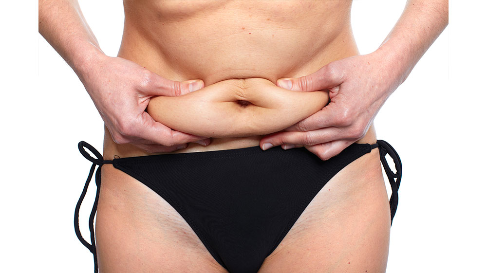 Choosing Between Liposuction and Tummy Tuck Surgery