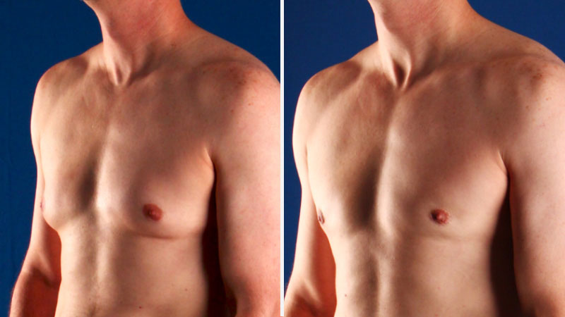 Male Breast Surgery (Gynecomastia)