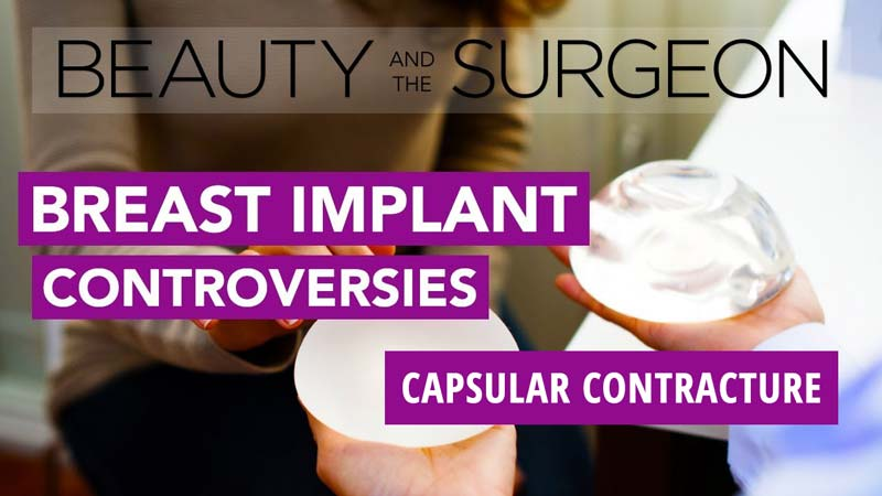 What We Know and Don't Know About Capsular Contracture
