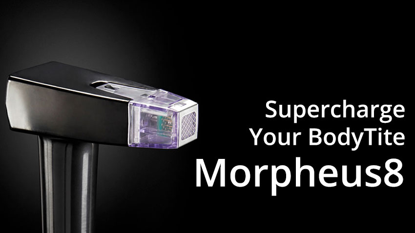 Supercharge Your BodyTite™ Procedure with Morpheus8