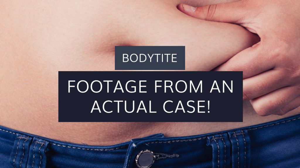 BodyTite: Footage From An Actual Case!