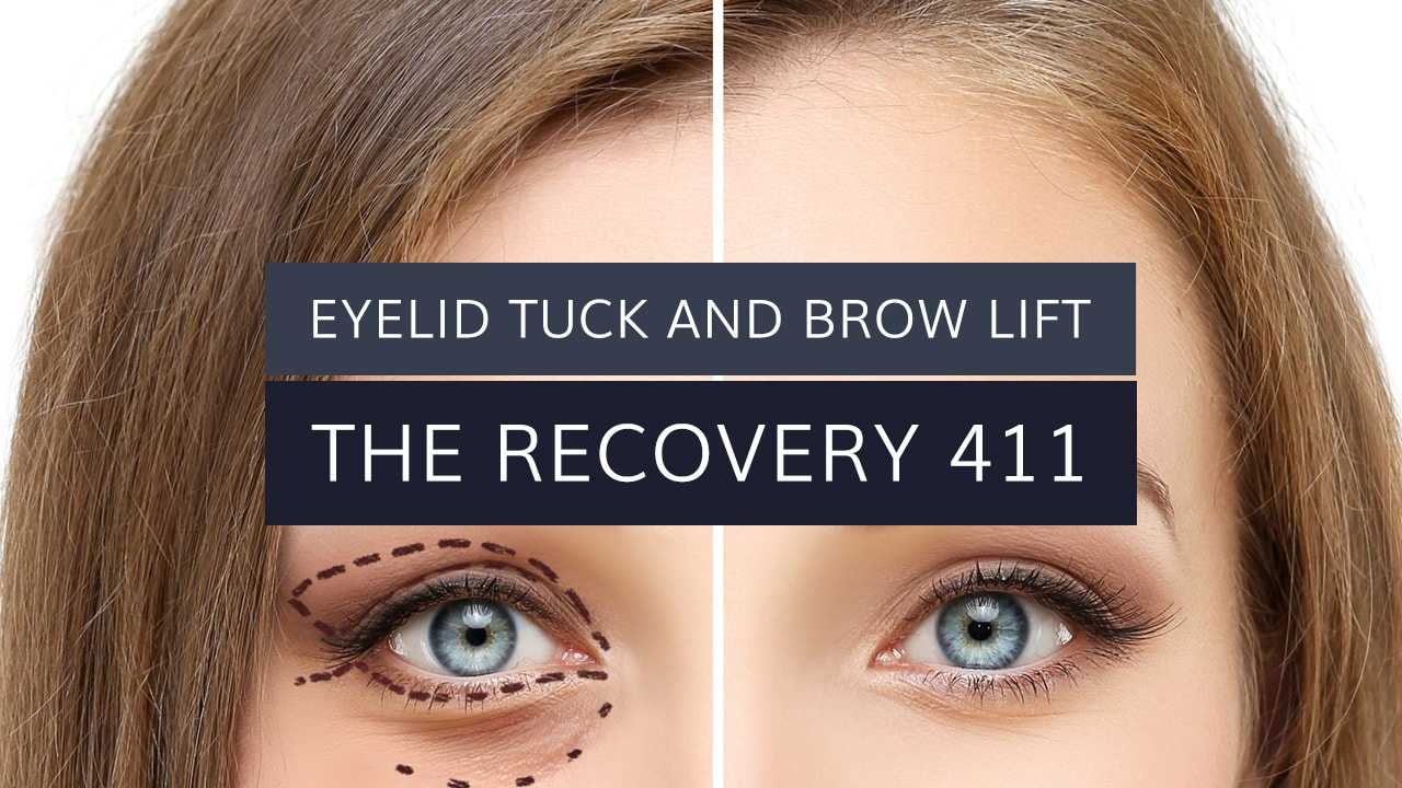 Eyelid Tuck and Brow Lift: The Recovery 411