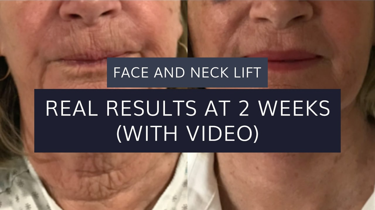 Face and Neck Lift: Real Results at 2 Weeks (with video)