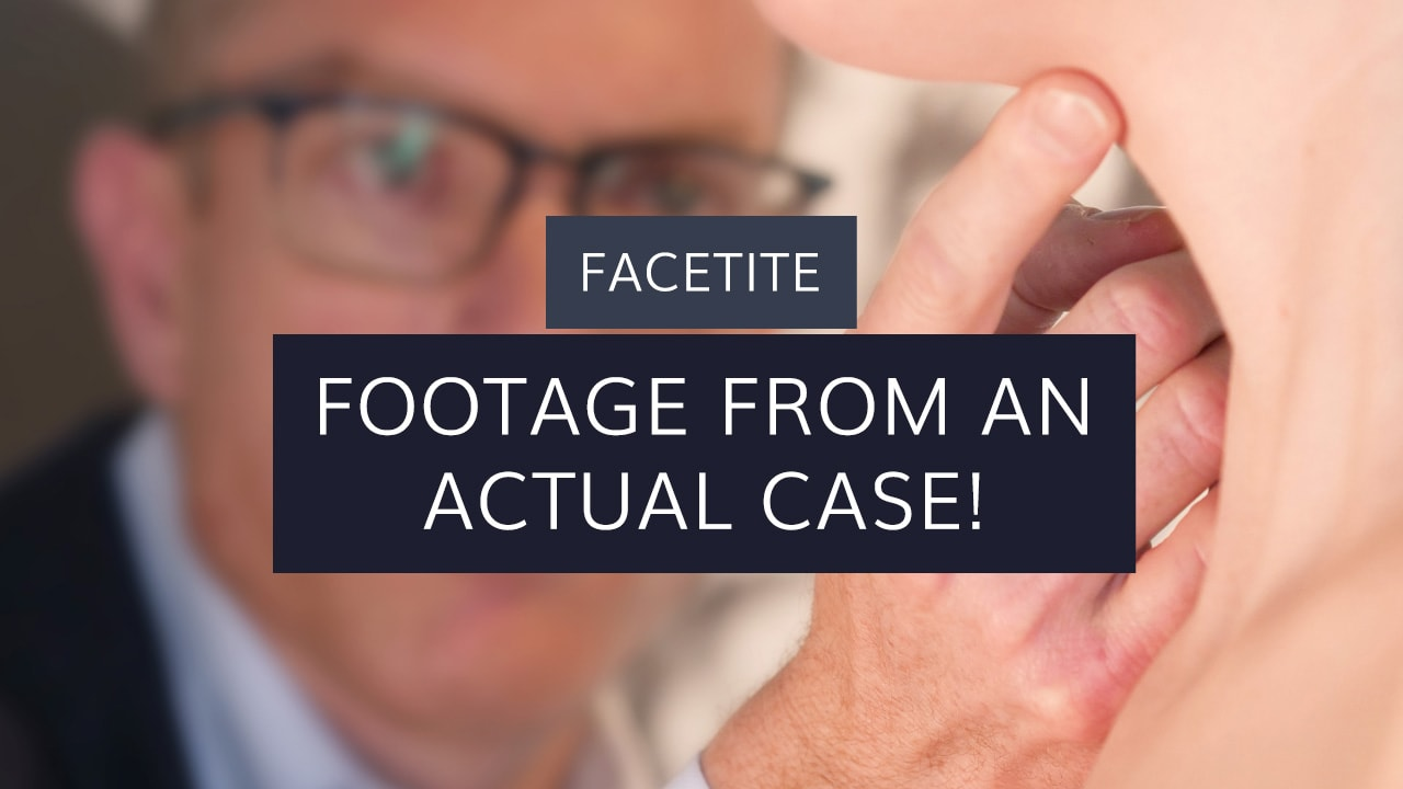 FaceTite: Footage From an Actual Case
